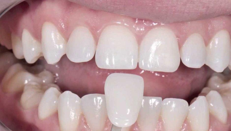 Mejora tu sonrisa con restauraciones anteriores